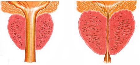 uroandrologia-malaga-prostata-2