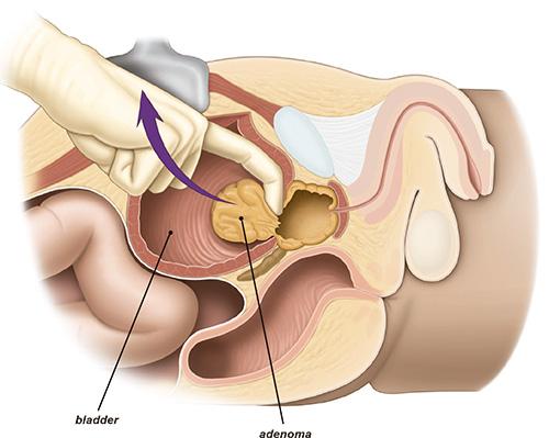 uroandrologia malaga prostata