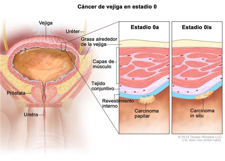 uroandrologia-malaga-vejiga-2