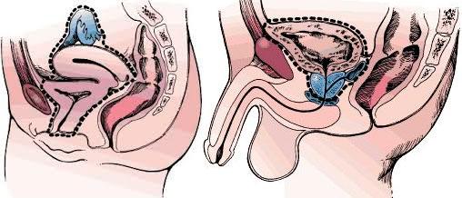 uroandrologia-malaga-vejiga-3