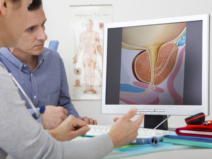 uroandrologia-prostata